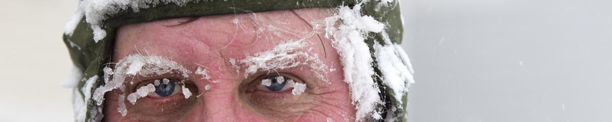Frost on Face